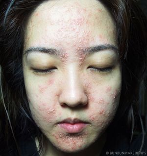 My-Skin-Ravaged-Allergic-Reaction-After-Facial-Experience_day-4-night_5