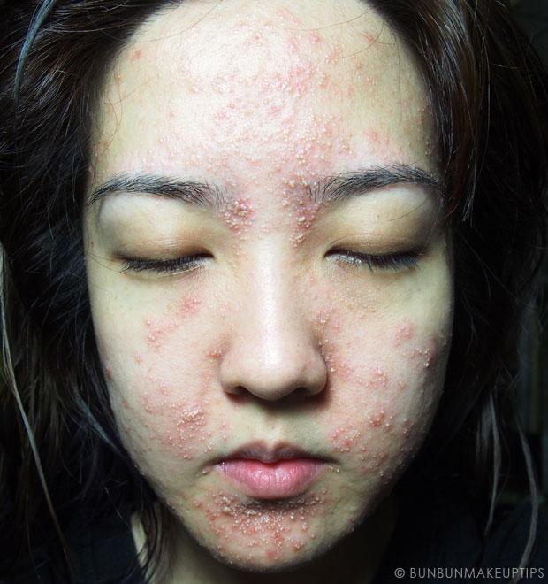 Color photo with allergic reaction neutrogena